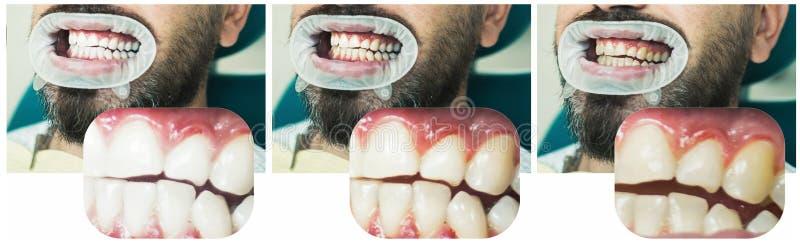 Hombre aislado en los dientes blancos: antes y despu?s de concepto Concepto de la estomatolog?a - cercano para arriba de dentista fotografía de archivo