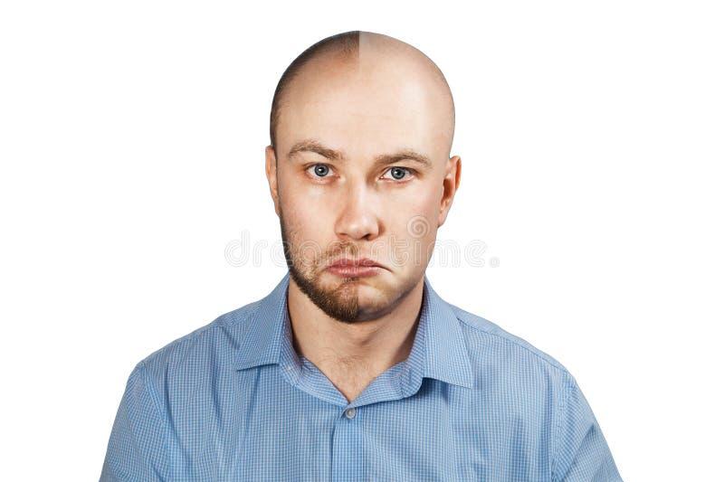 Hombre antes y después de la pérdida de pelo, trasplante del retrato en fondo blanco aislado Doble personalidad fotografía de archivo libre de regalías