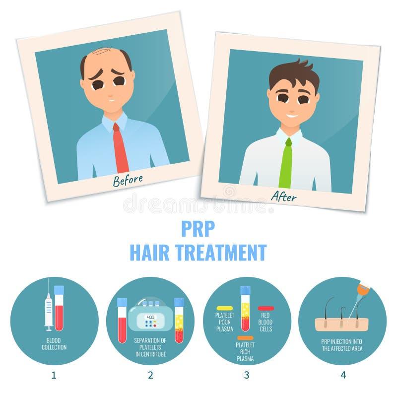 Hombre antes y después del tratamiento de PRP stock de ilustración