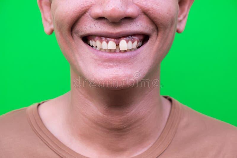 Hombre asiático que sonríe mostrando sus dientes poco atractivo en fondo verde fotografía de archivo libre de regalías