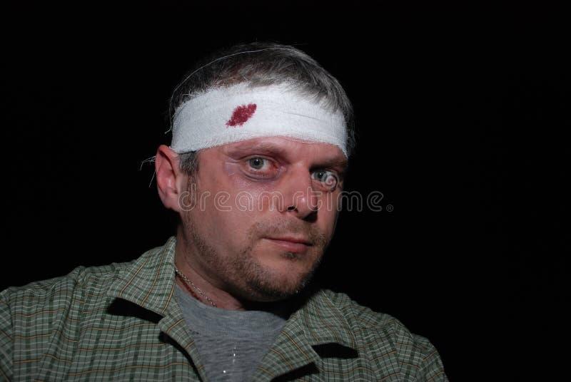 Hombre batido foto de archivo