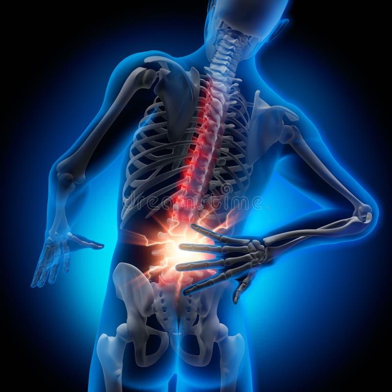 Hombre con dolor fuerte en la espina dorsal - ejemplo 3D stock de ilustración