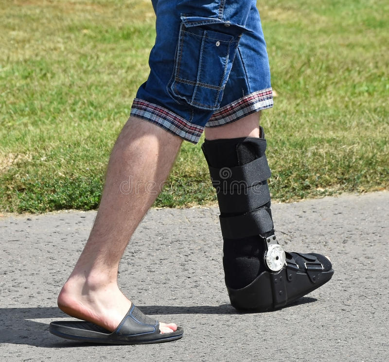 Hombre con la pierna quebrada fotografía de archivo libre de regalías