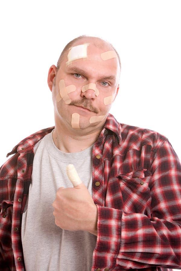 Hombre dañado fotografía de archivo libre de regalías