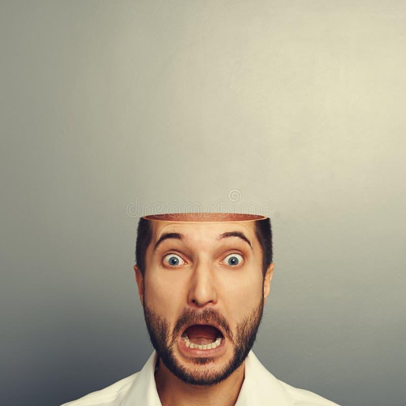 Hombre de griterío asustado con la cabeza abierta fotografía de archivo libre de regalías
