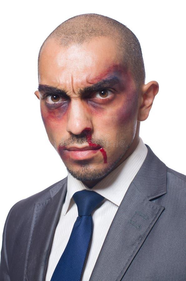 Download Hombre De Negocios Gravemente Batido Aislado Imagen de archivo - Imagen de contusión, businessman: 41916285