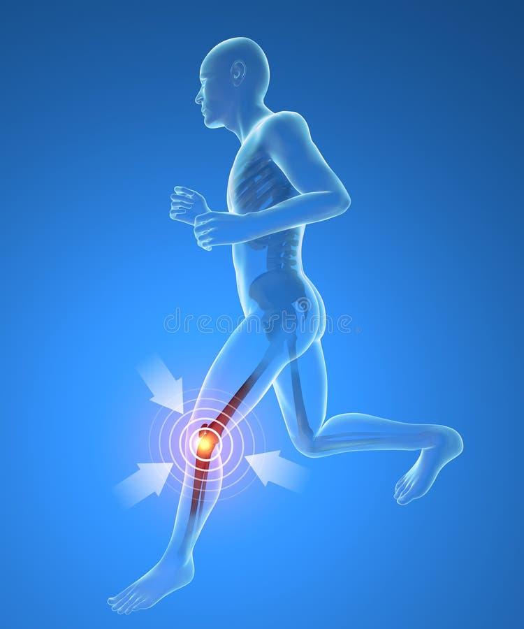 Hombre, esqueleto, funcionamiento, inflamación del dolor de la rodilla ilustración del vector