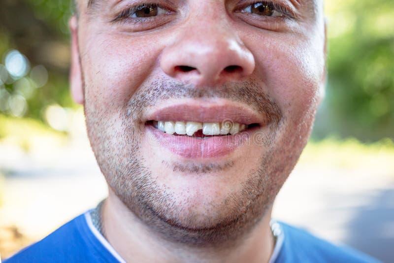 Hombre joven con un diente saltado imagen de archivo