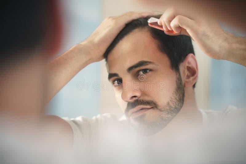 Hombre joven que aplica la loción para la alopecia y el tratamiento de la pérdida de pelo imagen de archivo libre de regalías