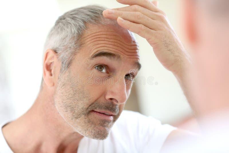 Hombre maduro que mira pérdida de pelo imagenes de archivo