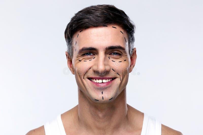 Hombre marcado con las líneas para la cirugía plástica fotografía de archivo