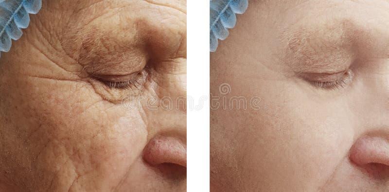 Hombre mayor antes y después de arrugas imagen de archivo libre de regalías