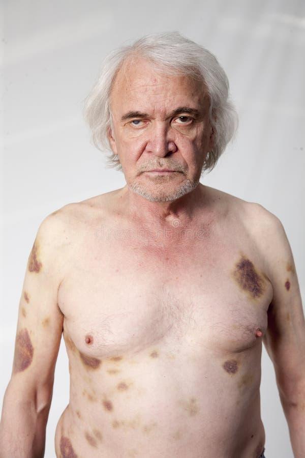 Hombre mutilado bandidos foto de archivo