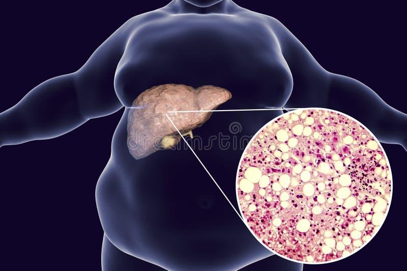 Hombre obeso con el hígado graso libre illustration