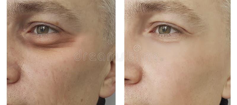 Hombre, ojo hinchado antes y después de procedimientos fotografía de archivo libre de regalías