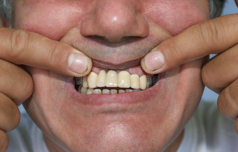 Hombre que muestra los dientes superiores delanteros falsos imagen de archivo libre de regalías