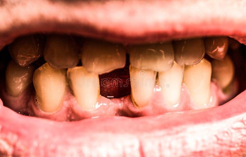 Hombre sin un diente delantero Ningunos dientes Dientes amarillos Mala salud dental, ningunos dientes, ning?n fluoruro, erosi?n d imagen de archivo