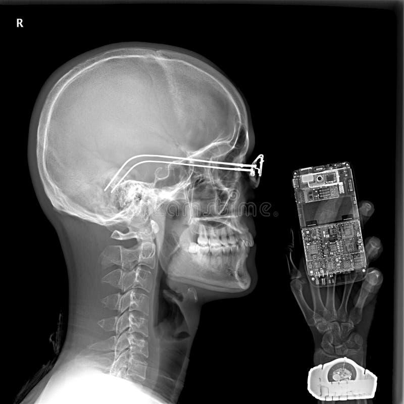 Hombre y teléfono celular bajo radiografía foto de archivo