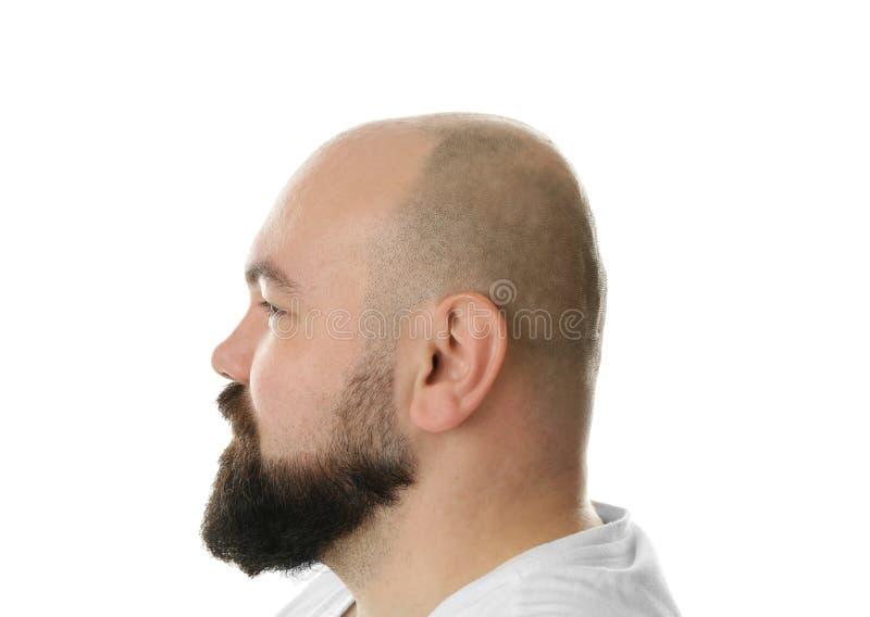 Homem adulto calvo foto de stock