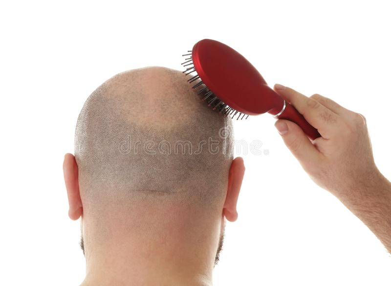 Homem adulto calvo com escova de cabelo foto de stock royalty free