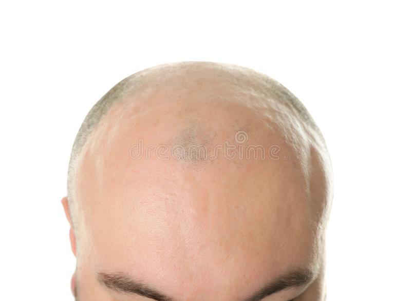 Homem adulto calvo no fundo branco fotos de stock royalty free