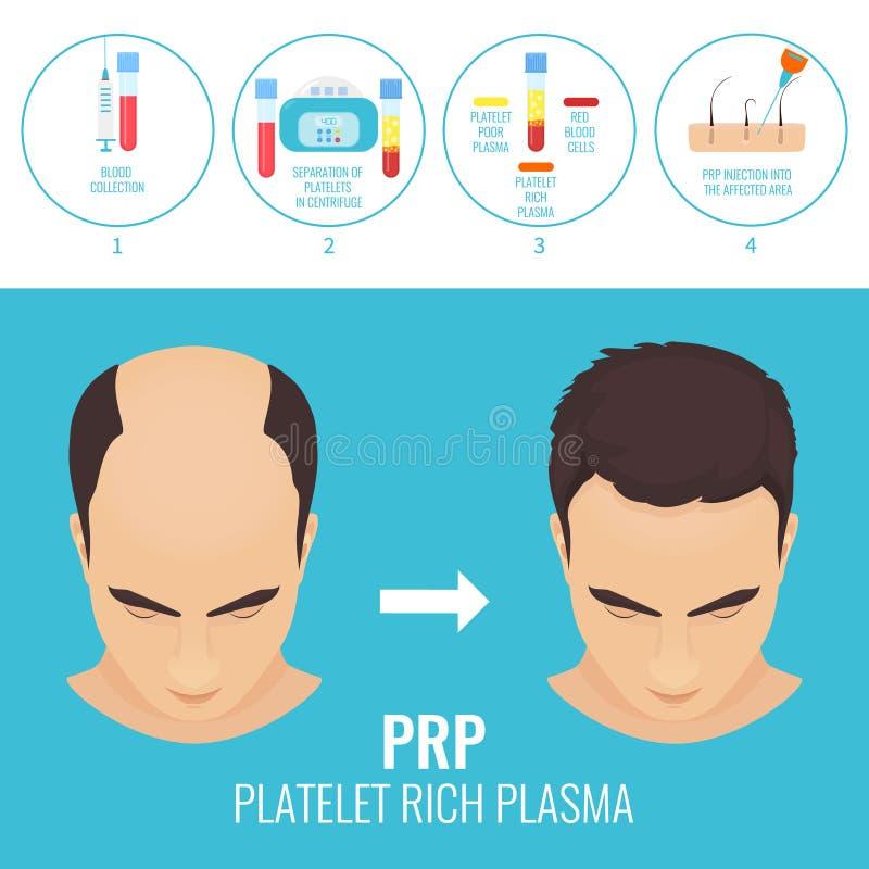 Homem antes e depois da terapia de RPR ilustração do vetor