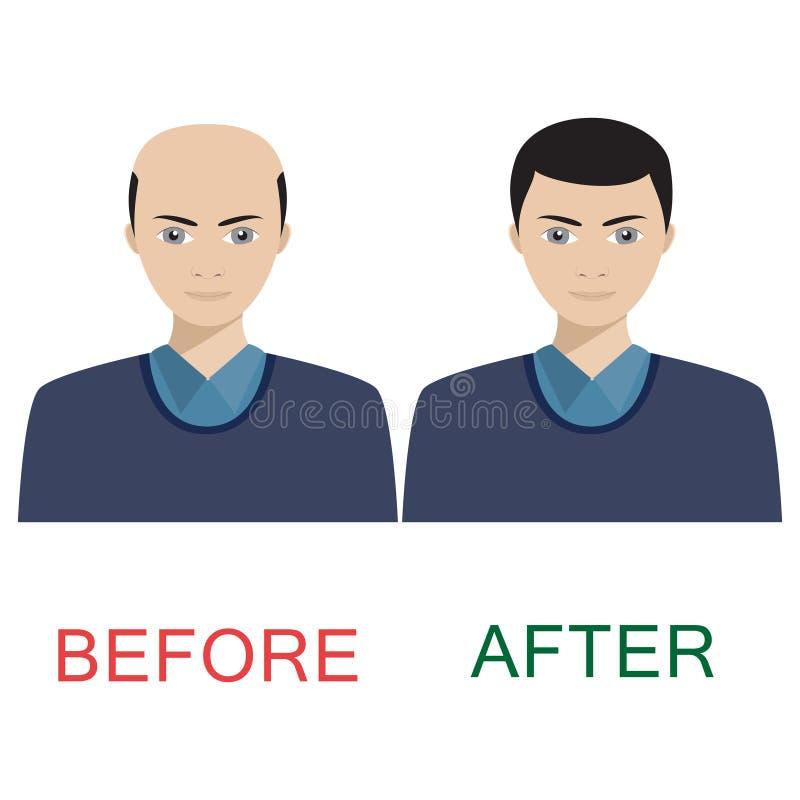 Homem antes e depois do tratamento do cabelo ilustração do vetor