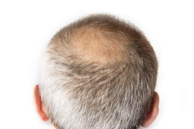 Homem calvo com pente Conceito da queda de cabelo fotos de stock