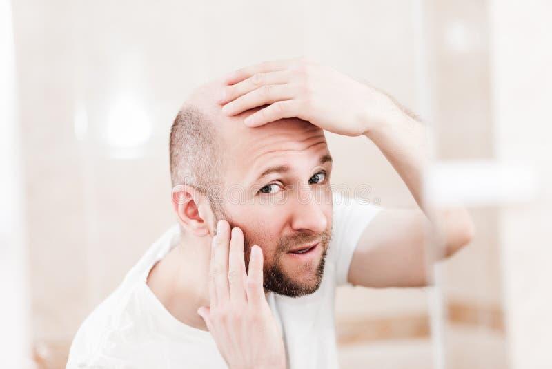 Homem calvo que olha o espelho na calvície e na queda de cabelo principais fotos de stock