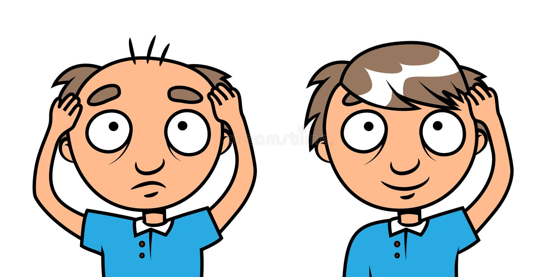 Homem calvo - tratamento da perda de cabelo ilustração do vetor