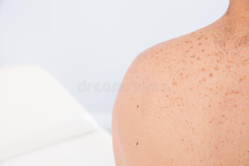 Homem com as marcas de nascença na clínica, close up foto de stock