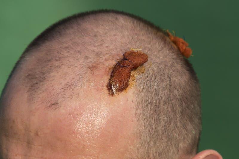 Homem com cabeça quebrada em dois lugares foto de stock