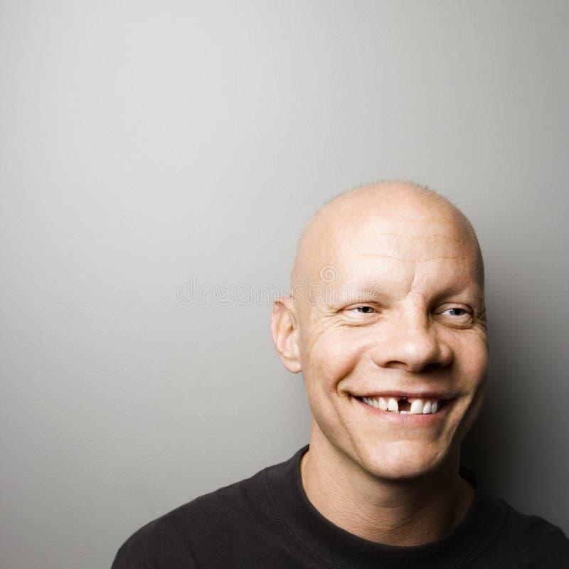 Homem com dente faltante. imagens de stock