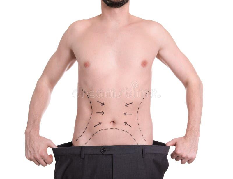 Homem com marcas na barriga para a operação da cirurgia estética no fundo branco imagens de stock