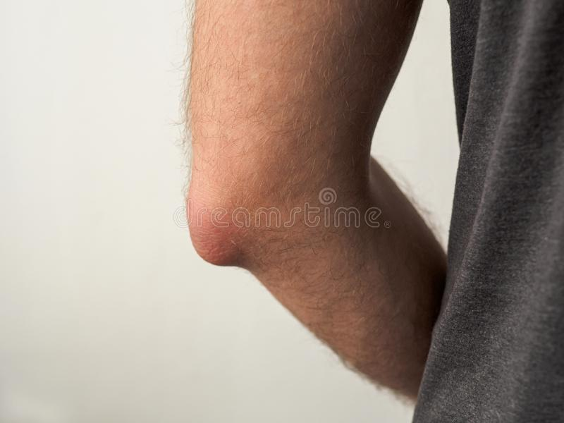 Homem com o cotovelo doloroso vehy imagem de stock royalty free