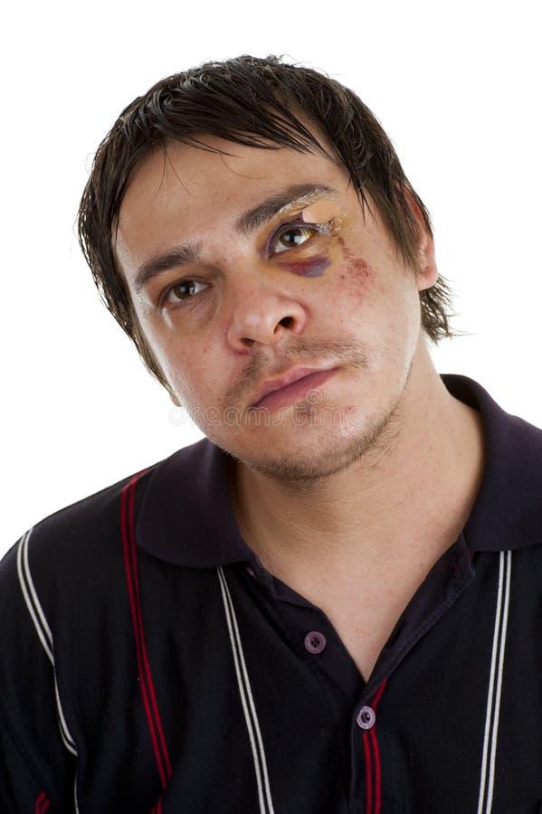 Homem com olho roxo fotos de stock