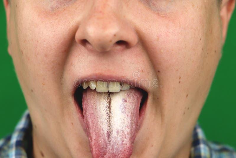 Homem com ozostomia para albicans da candida na língua fotografia de stock