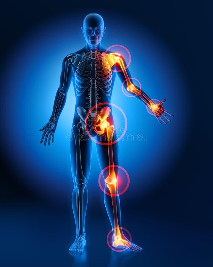 Homem com sintomas pesados da dor articular ilustração do vetor
