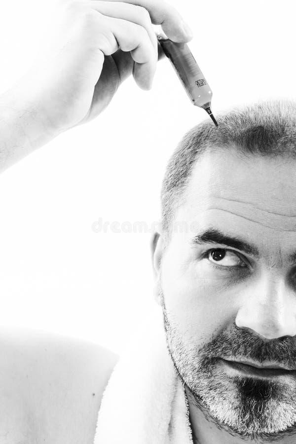 Homem de meia idade referido pelo fim da calvície da calvície da queda de cabelo acima do fundo preto e branco, branco fotografia de stock royalty free