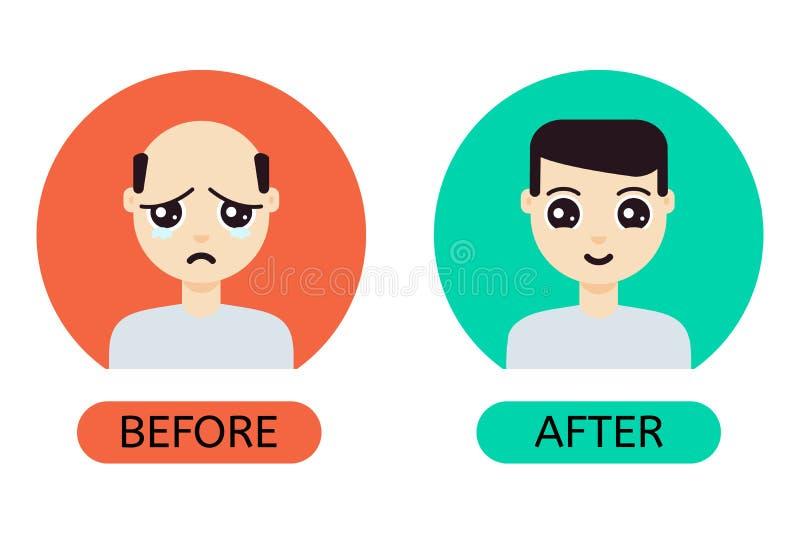 Homem dos desenhos animados antes e depois da transplantação do cabelo ilustração royalty free