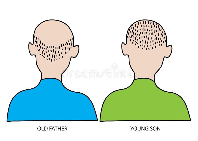 Homem idoso e novo O cabelo perdem e o conceito da calvície ilustração do vetor