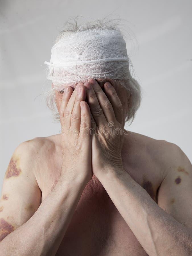 Homem mutilado bandidos imagens de stock