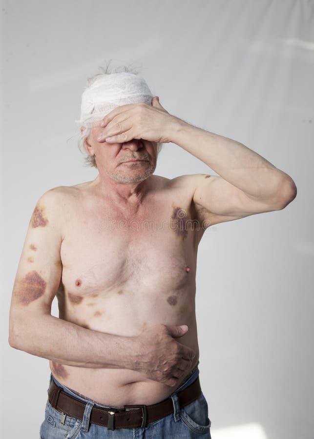 Homem mutilado bandidos foto de stock royalty free