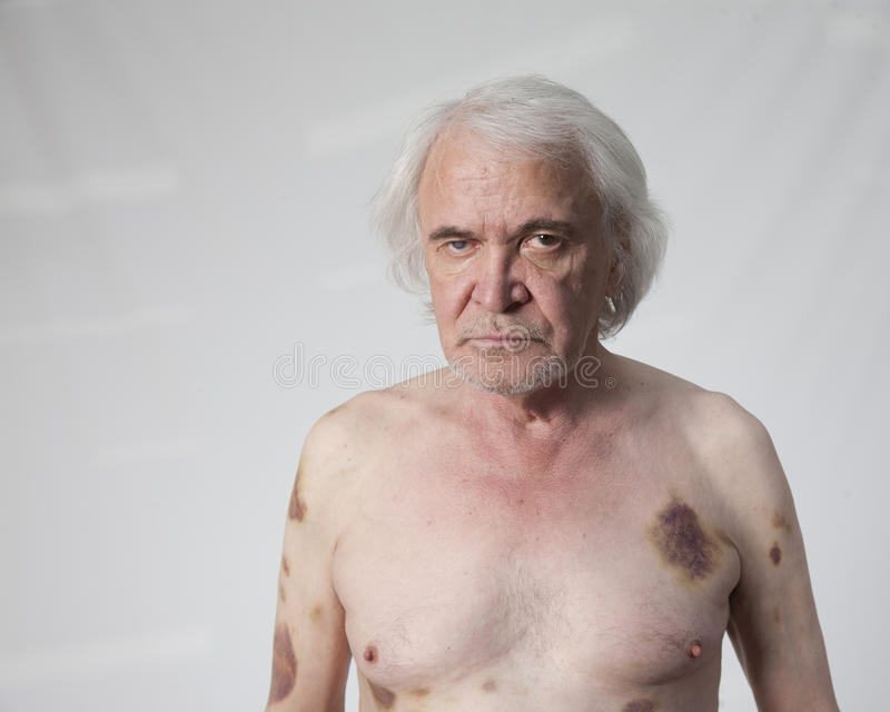 Homem mutilado bandidos fotos de stock royalty free