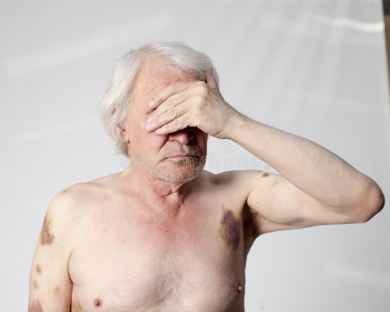 Homem mutilado bandidos fotografia de stock royalty free