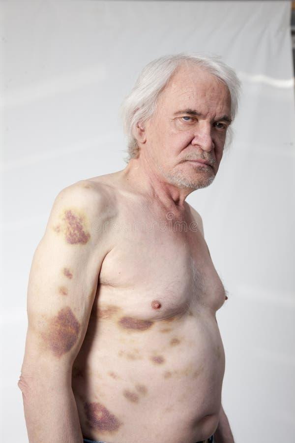 Homem mutilado bandidos imagens de stock royalty free