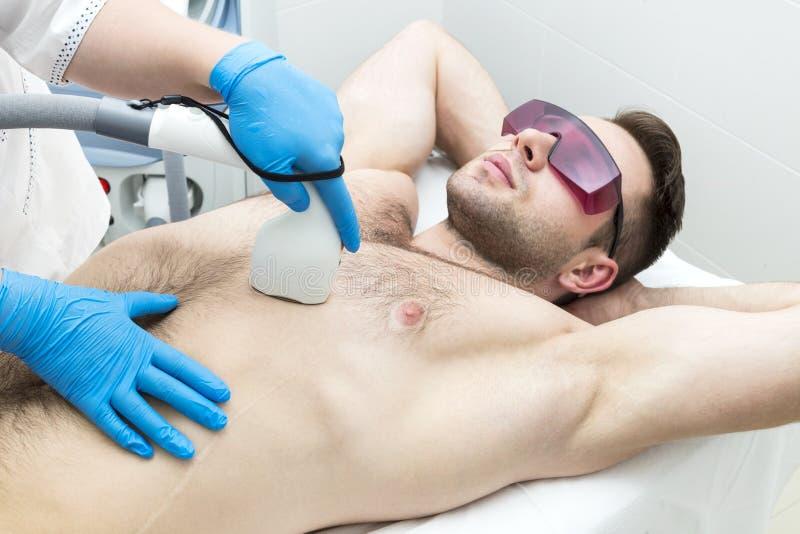 Homem no procedimento da remoção do cabelo do laser foto de stock royalty free