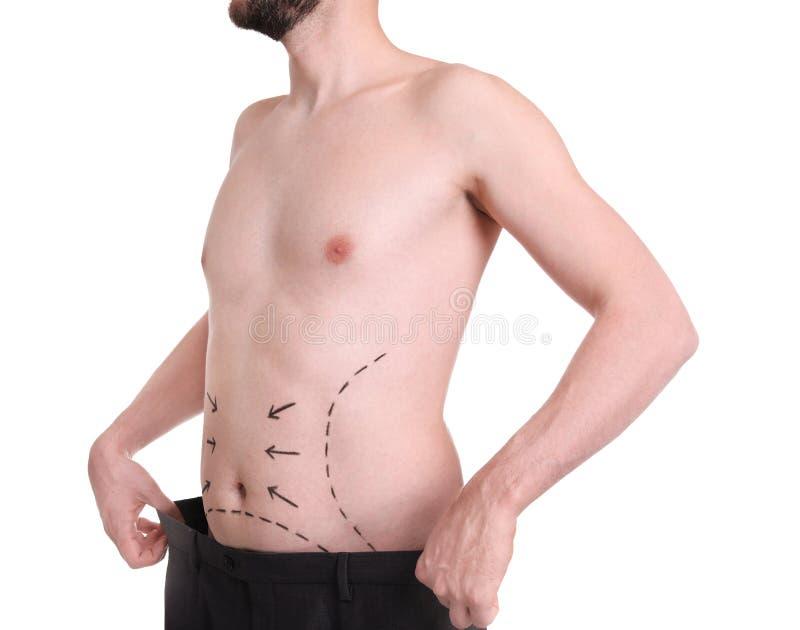 Homem novo com marcas na barriga para a cirurgia estética imagens de stock