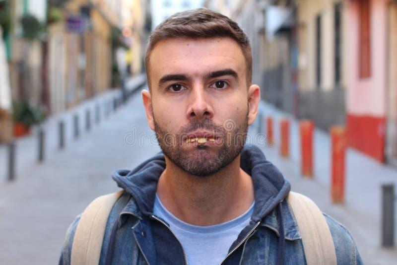 Homem novo com os dentes realmente maus foto de stock royalty free
