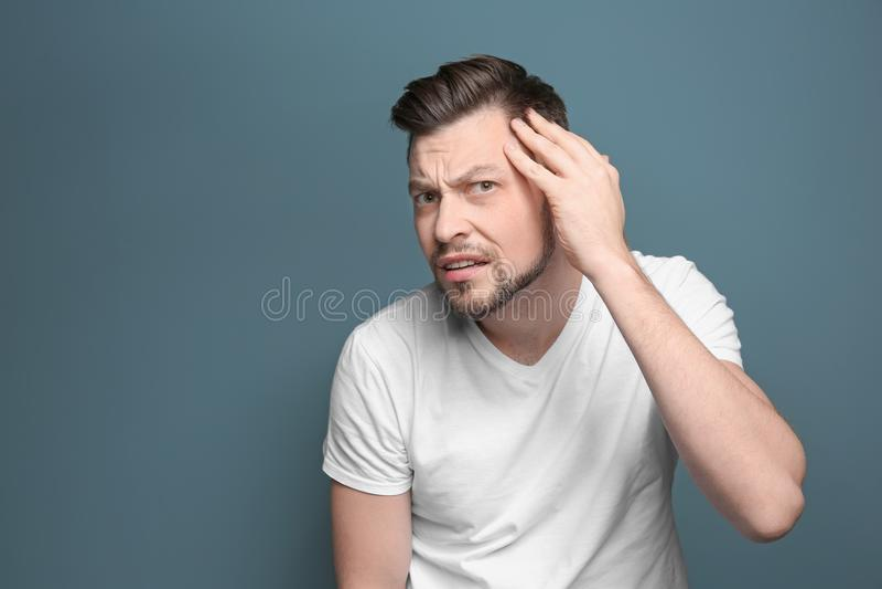 Homem novo com problema da queda de cabelo fotos de stock